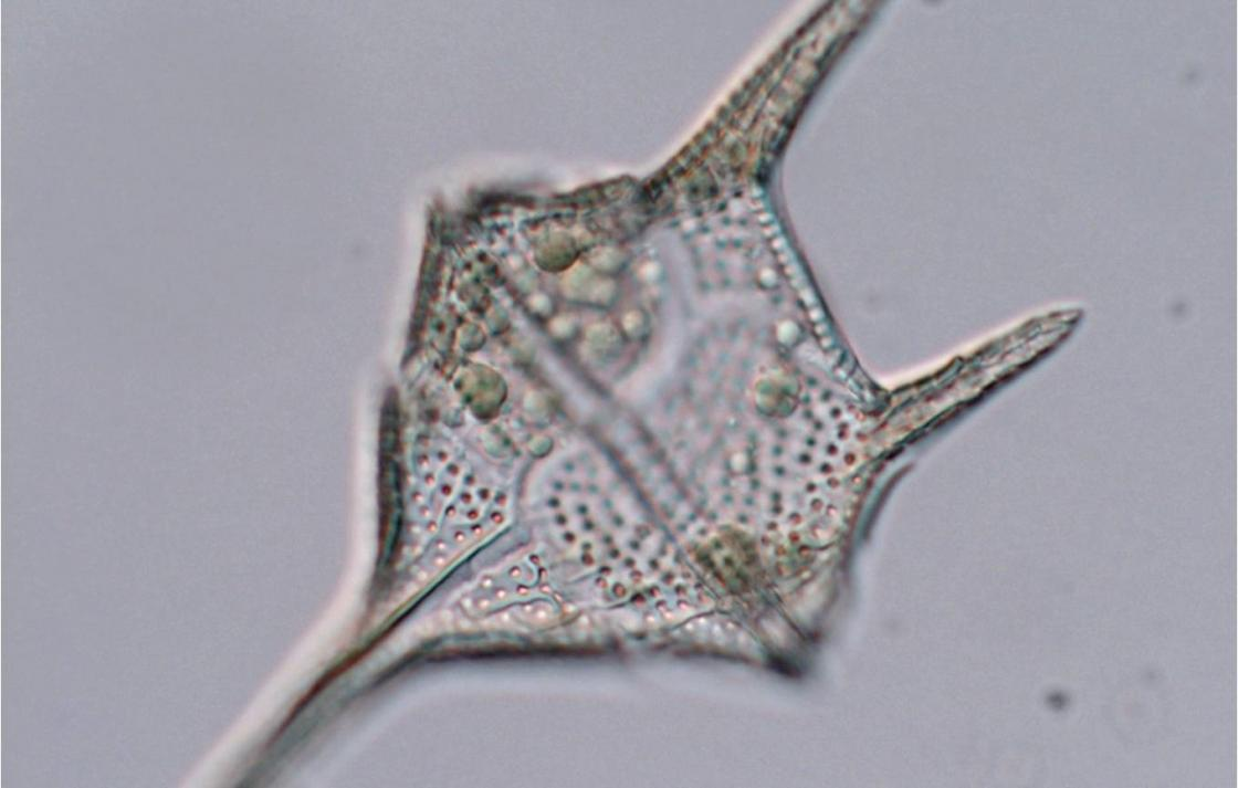 Marine dinoflagellate Ceratium furca – Light microscopy, P.Ajani