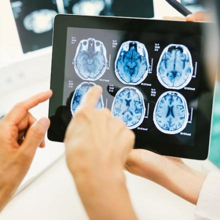 Two hands pointing at brain scans on a tablet screen