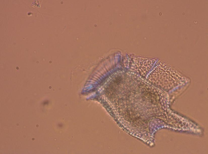 phytoplankton dinophysis