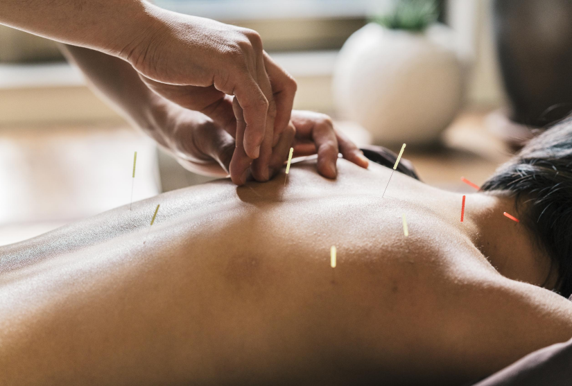 Person receiving acupuncture treatment in back