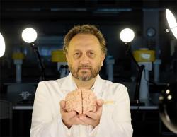 Bryce Vissel holding a human brain