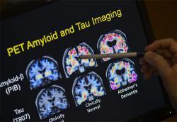 Pet scans of Alzheimers brain