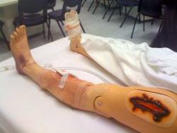 Photo of manikin leg demonstrating trauma